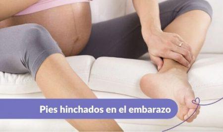 3 consejos para disminuir los pies hinchados en el embarazo
