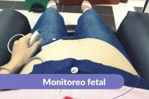 Monitoreo fetal Maternar